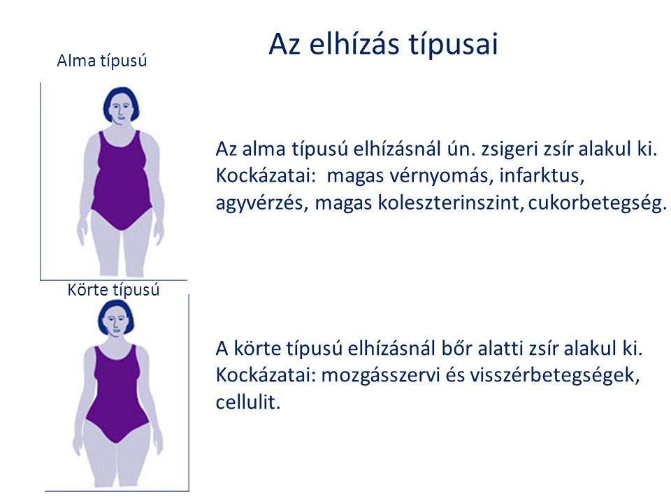 Az elhízás típusai Alma típusú. Az alma típusú elhízásnál ún. zsigeri zsír alakul ki. Kockázatai: magas vérnyomás, infarktus,