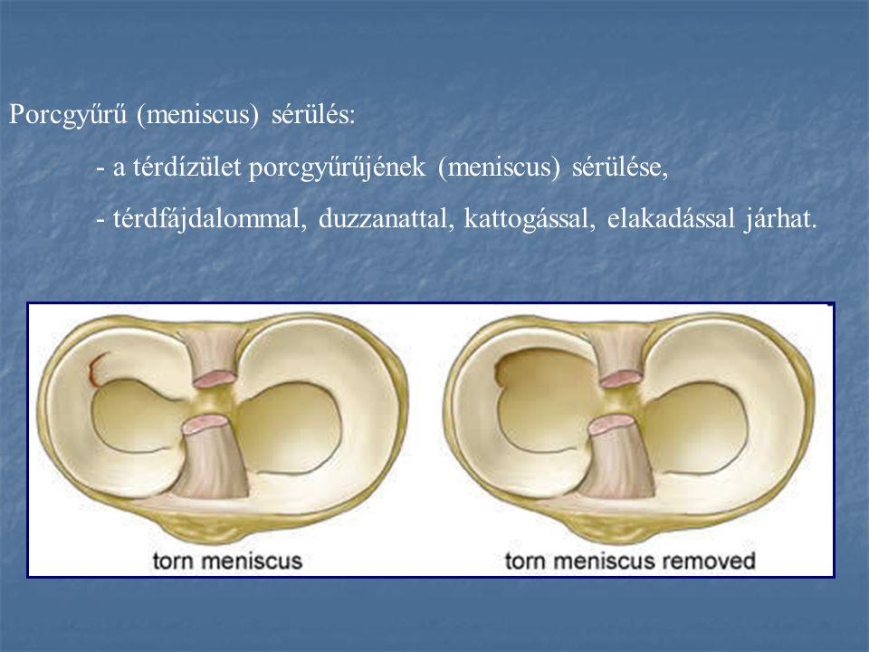 Porcgyűrű (meniscus) sérülés: