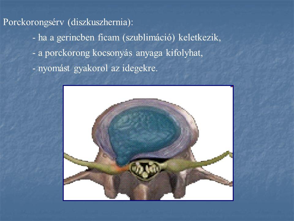 Porckorongsérv (diszkuszhernia):