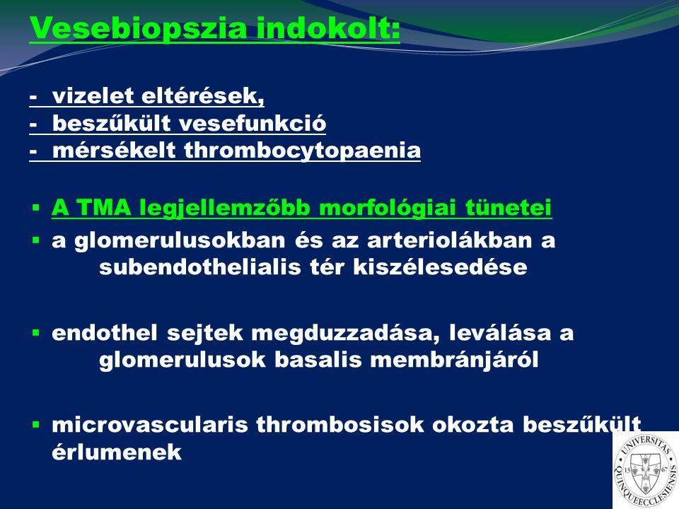 Vesebiopszia indokolt: - vizelet eltérések, - beszűkült vesefunkció - mérsékelt thrombocytopaenia