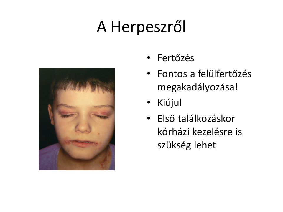 A Herpeszről Fertőzés Fontos a felülfertőzés megakadályozása! Kiújul
