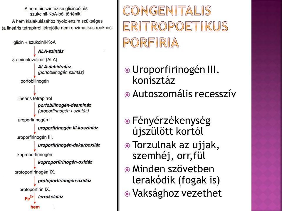 Congenitalis eritropoetikus porfiria