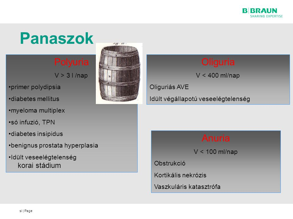 Panaszok Polyuria Oliguria Anuria V > 3 l /nap primer polydipsia