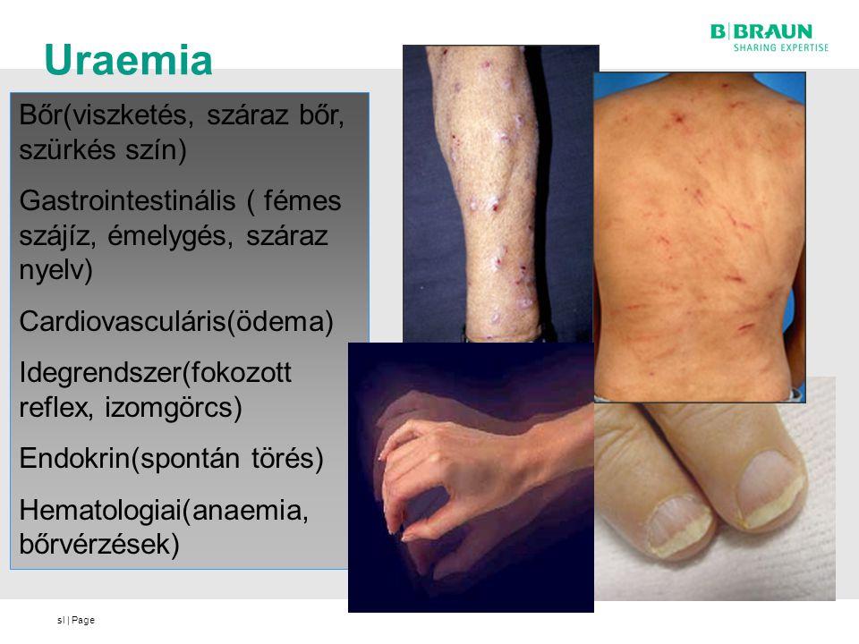 Uraemia Bőr(viszketés, száraz bőr, szürkés szín)