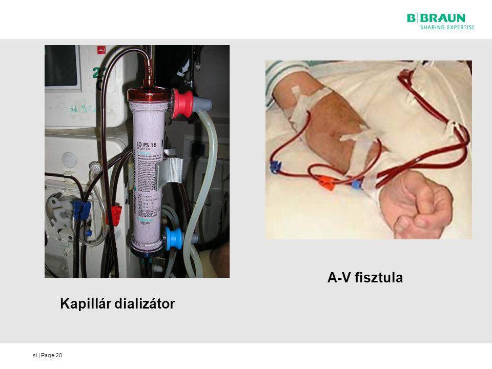 A-V fisztula Kapillár dializátor