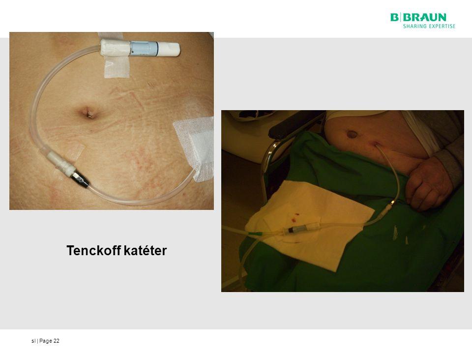 Tenckoff katéter