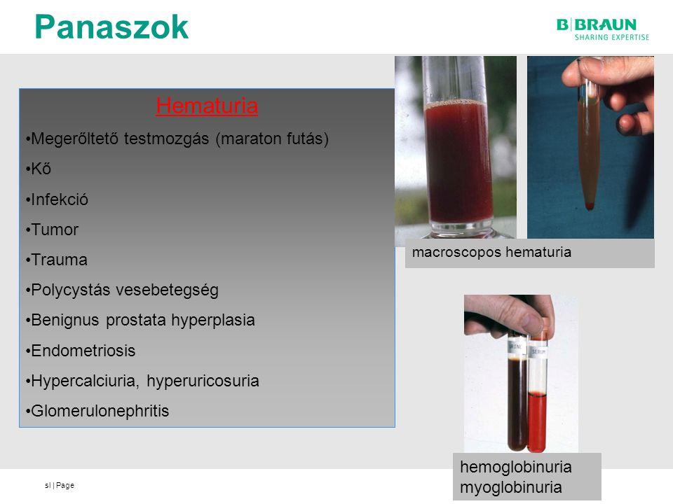 Panaszok Hematuria Megerőltető testmozgás (maraton futás) Kő Infekció