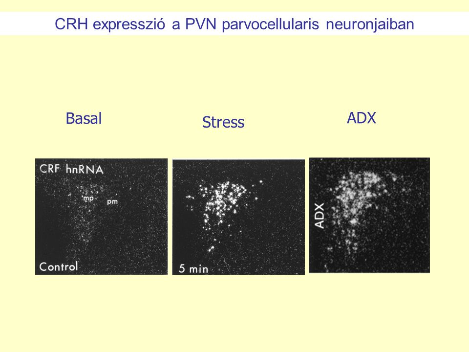 CRH expresszió a PVN parvocellularis neuronjaiban