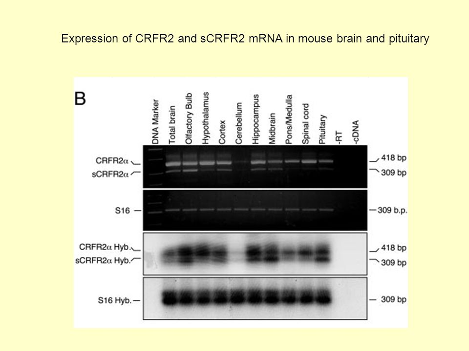 Expression of CRFR2 and sCRFR2 mRNA in mouse brain and pituitary