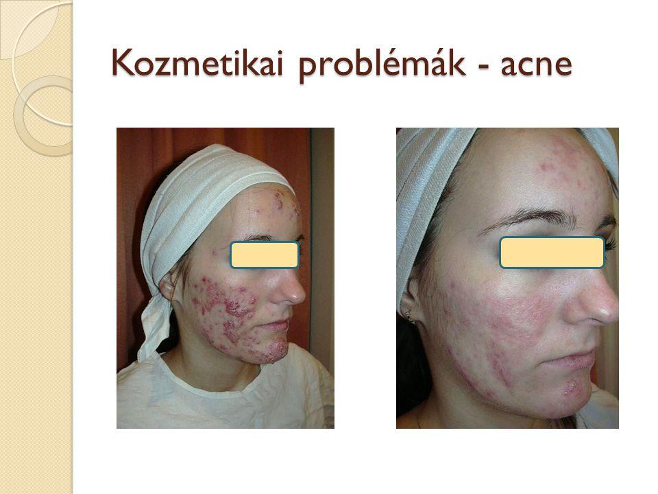 Kozmetikai problémák - acne