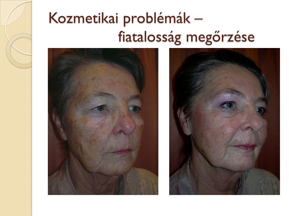 Kozmetikai problémák – fiatalosság megőrzése