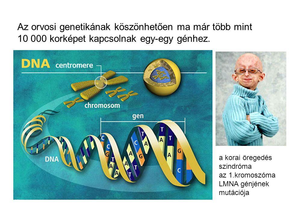 Az orvosi genetikának köszönhetően ma már több mint 10 000 korképet kapcsolnak egy-egy génhez.