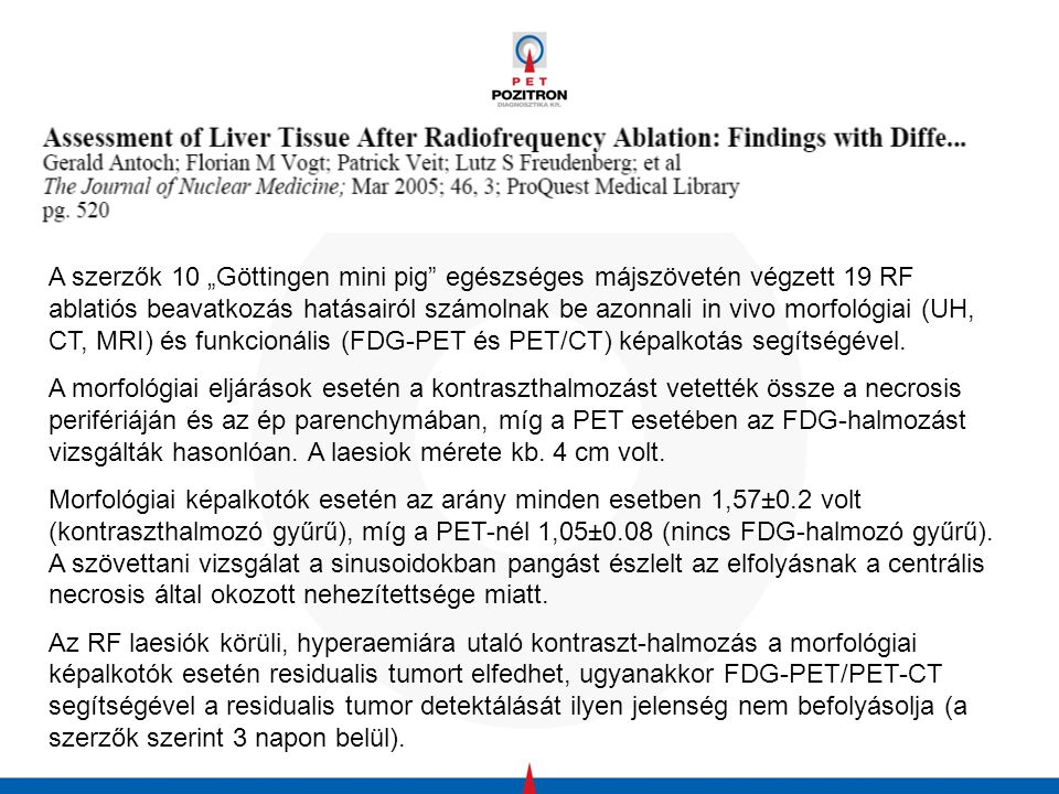 """A szerzők 10 """"Göttingen mini pig egészséges májszövetén végzett 19 RF ablatiós beavatkozás hatásairól számolnak be azonnali in vivo morfológiai (UH, CT, MRI) és funkcionális (FDG-PET és PET/CT) képalkotás segítségével."""