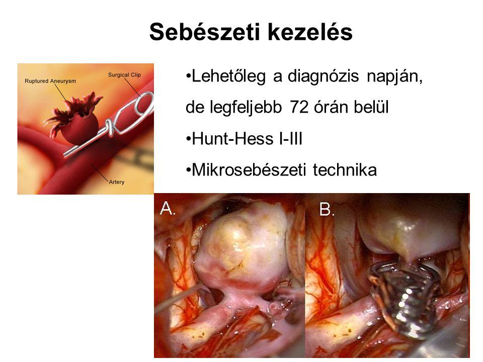 Sebészeti kezelés Lehetőleg a diagnózis napján, de legfeljebb 72 órán belül. Hunt-Hess I-III.