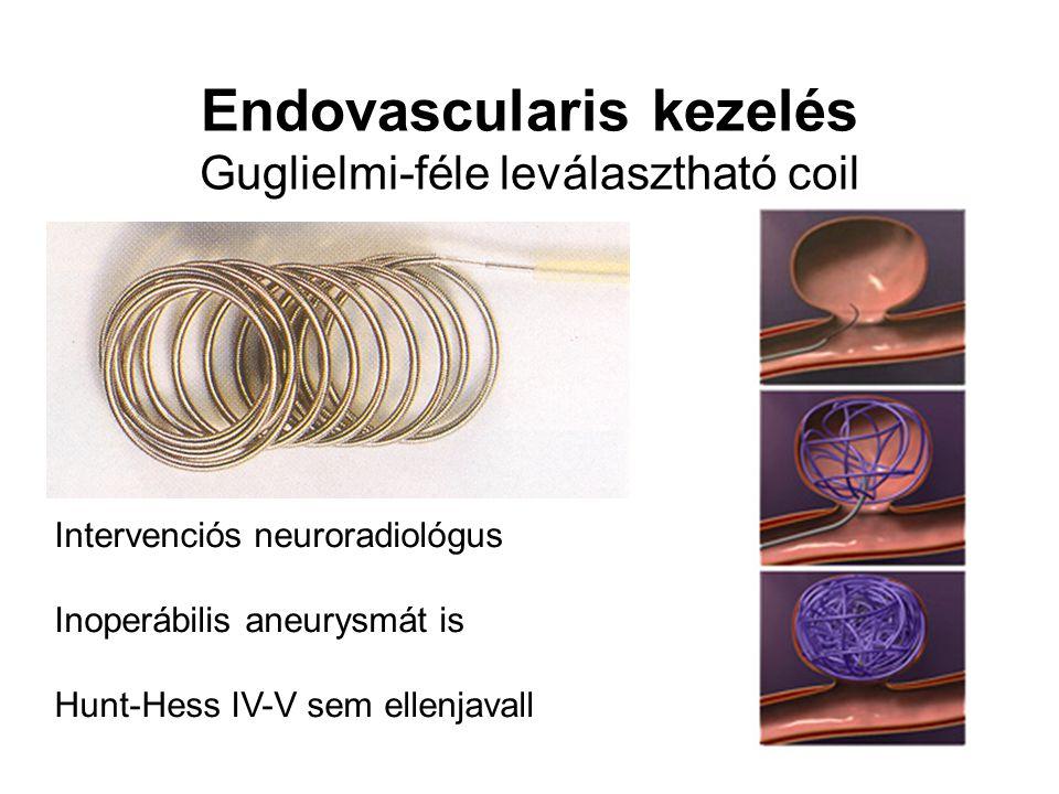 Endovascularis kezelés Guglielmi-féle leválasztható coil