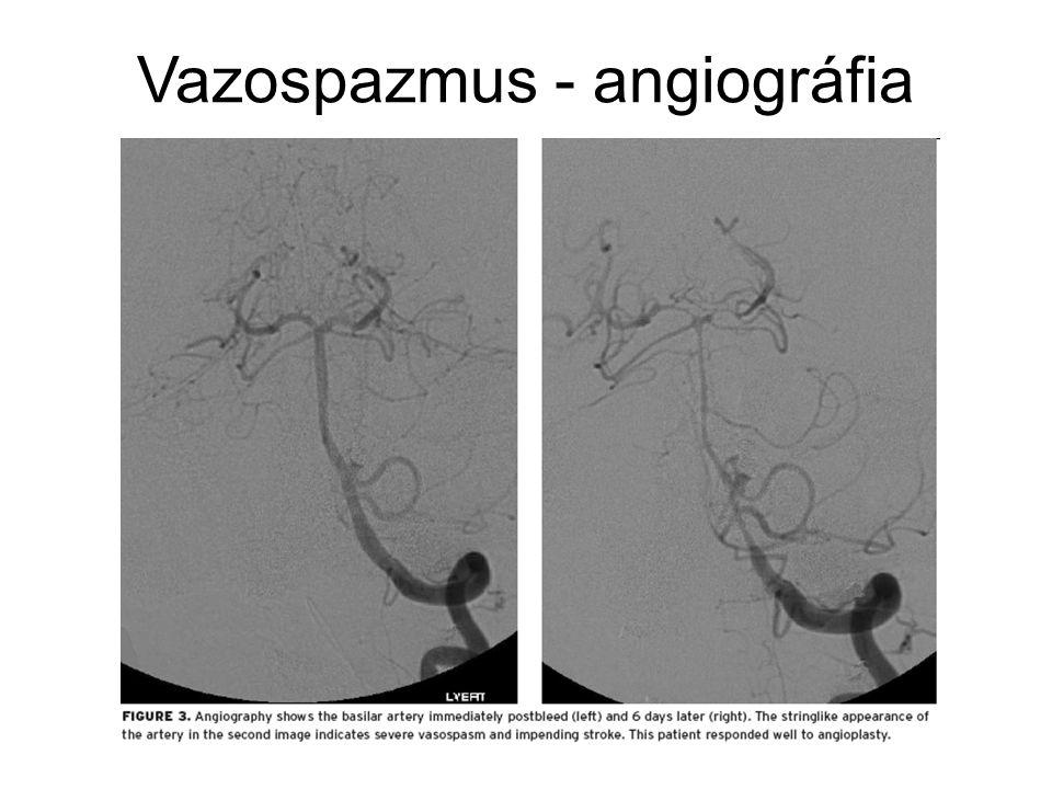 Vazospazmus - angiográfia