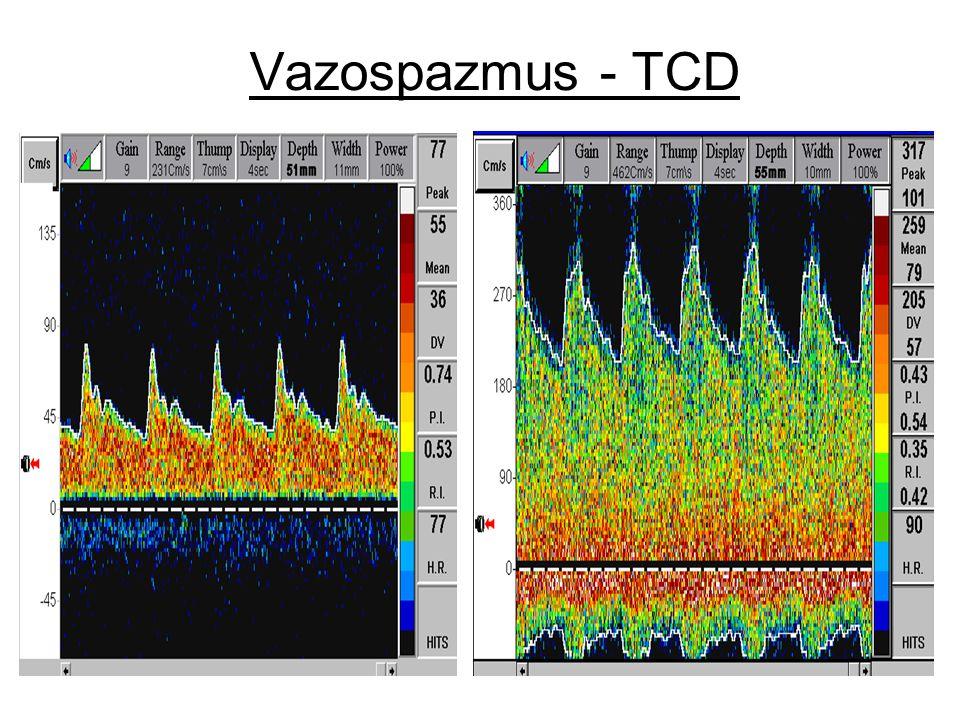 Vazospazmus - TCD