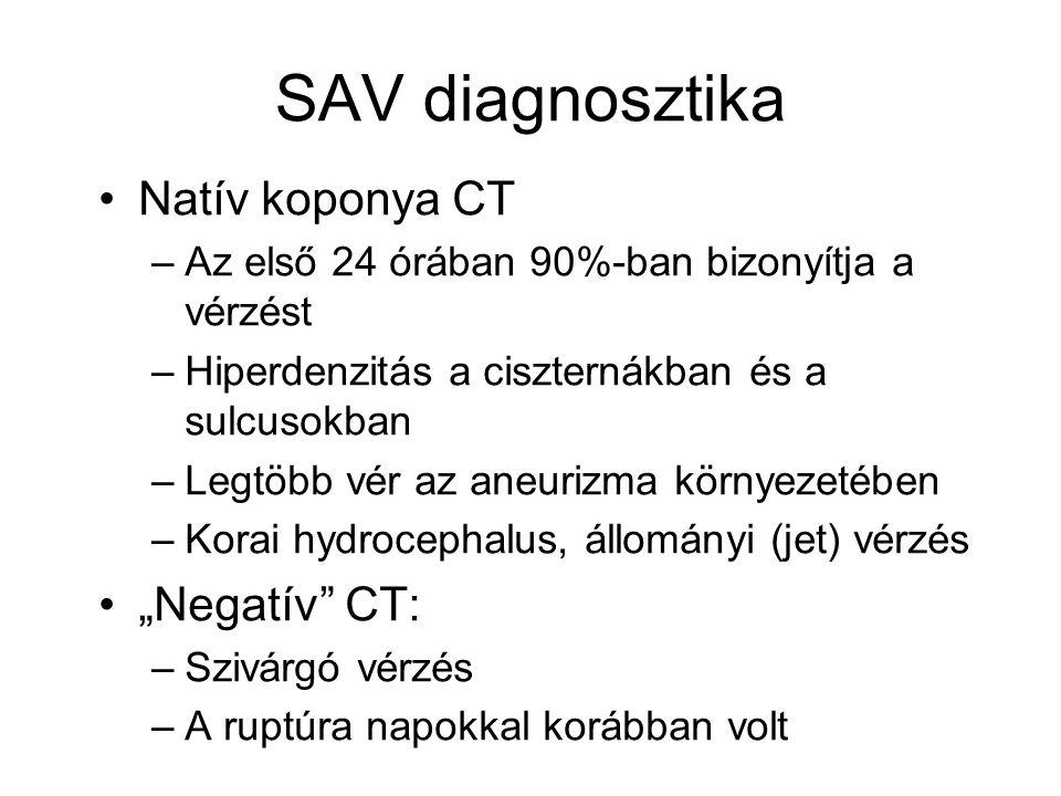 """SAV diagnosztika Natív koponya CT """"Negatív CT:"""