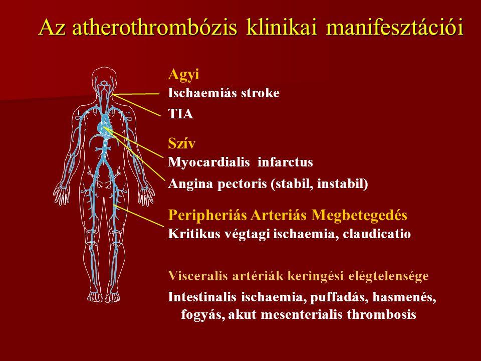Az atherothrombózis klinikai manifesztációi