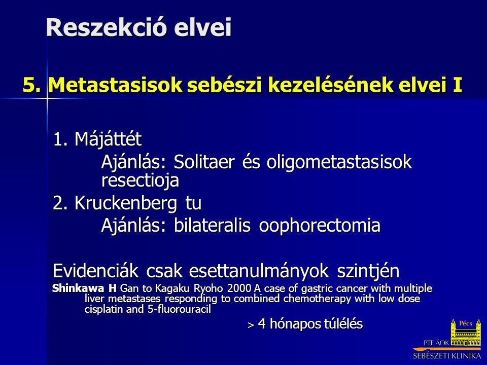 5. Metastasisok sebészi kezelésének elvei I