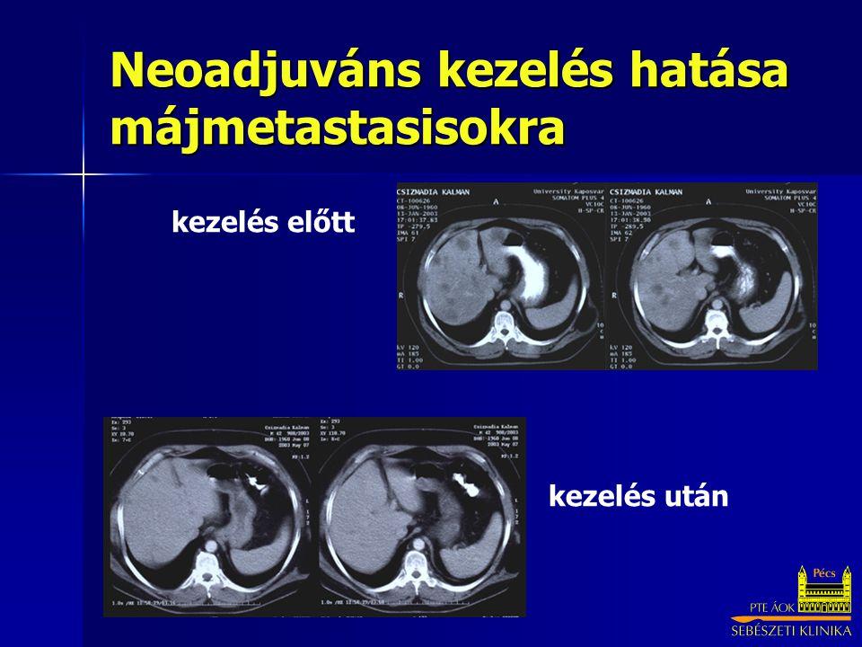 Neoadjuváns kezelés hatása májmetastasisokra
