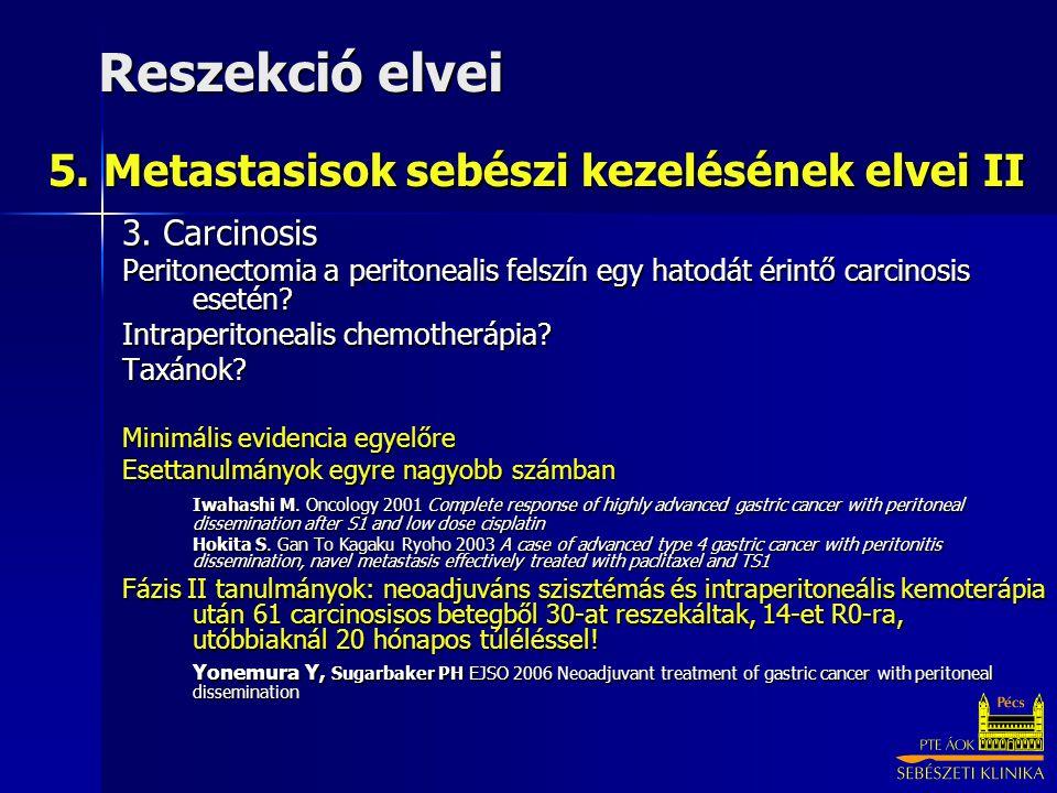 5. Metastasisok sebészi kezelésének elvei II