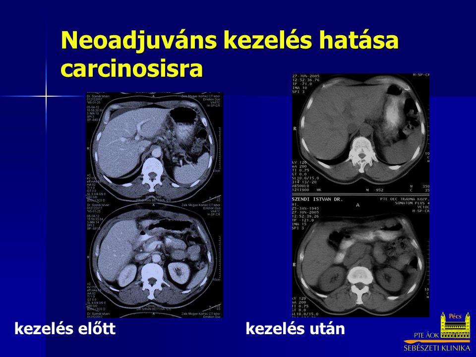 Neoadjuváns kezelés hatása carcinosisra