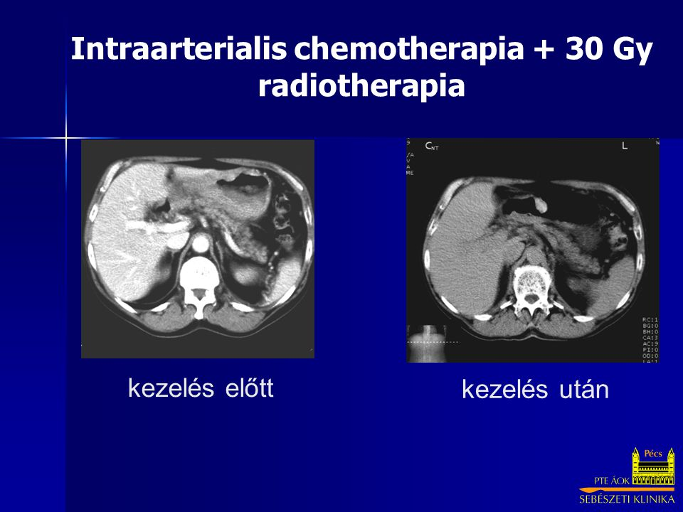 Intraarterialis chemotherapia + 30 Gy radiotherapia
