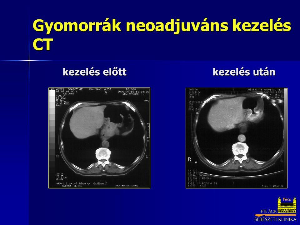 Gyomorrák neoadjuváns kezelés CT kezelés előtt kezelés után