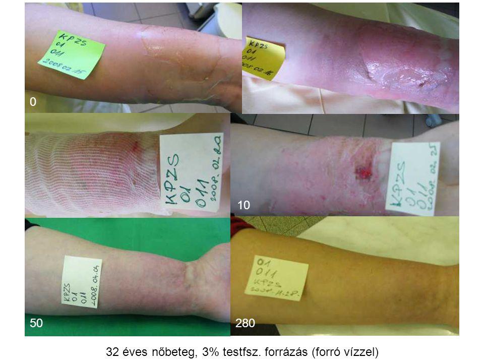 32 éves nőbeteg, 3% testfsz. forrázás (forró vízzel)