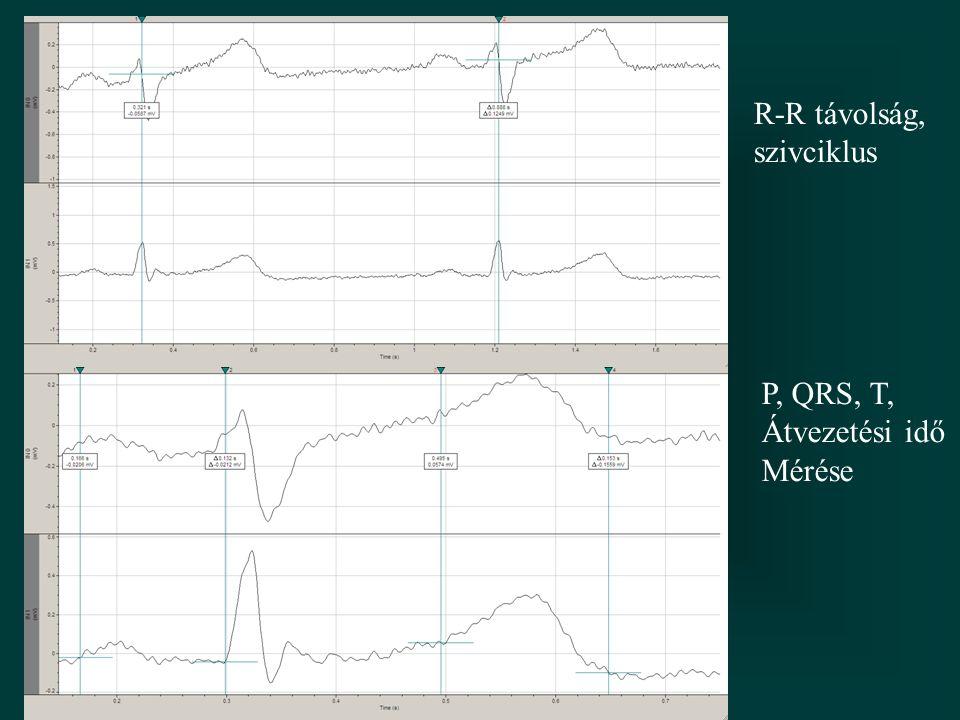 R-R távolság, szivciklus P, QRS, T, Átvezetési idő Mérése