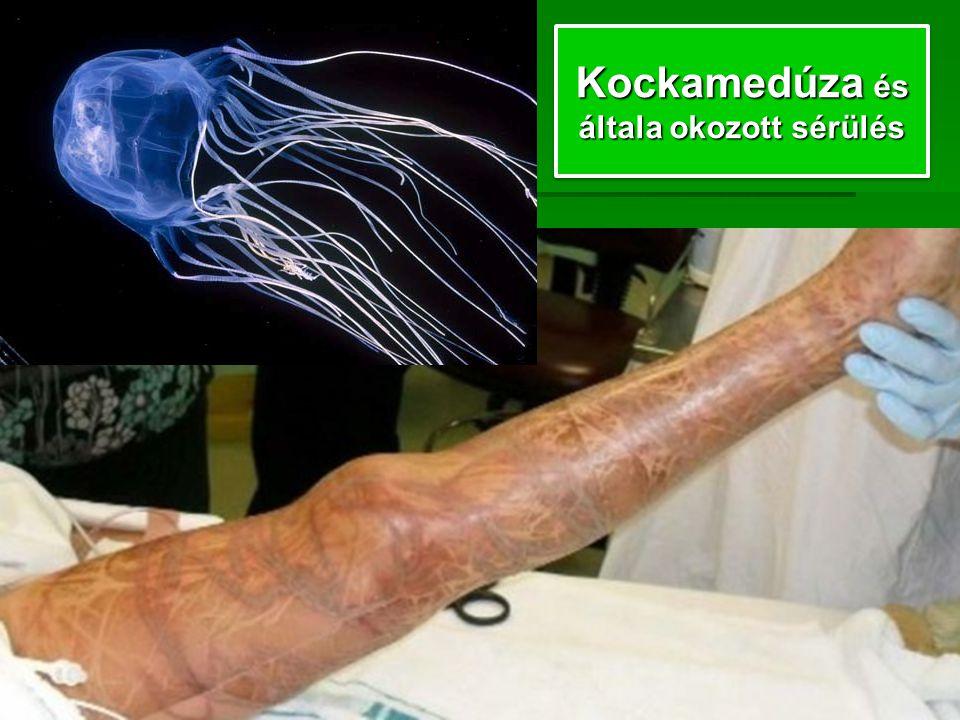 Kockamedúza és általa okozott sérülés