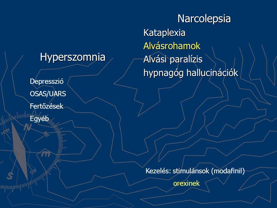 Narcolepsia Hyperszomnia Kataplexia Alvásrohamok Alvási paralízis
