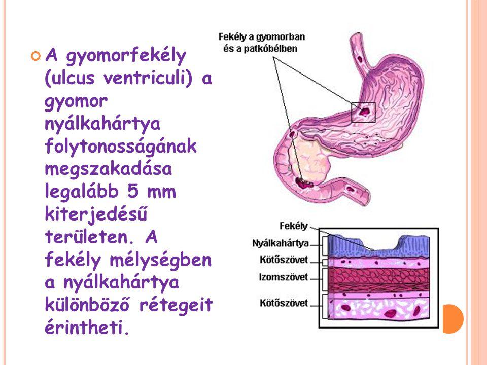 A gyomorfekély (ulcus ventriculi) a gyomor nyálkahártya folytonosságának megszakadása legalább 5 mm kiterjedésű területen.