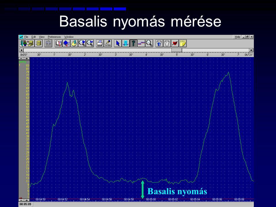 Basalis nyomás mérése Basalis nyomás