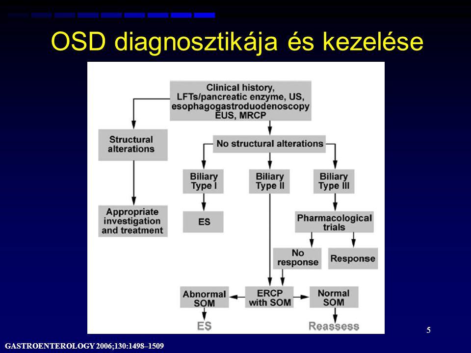 OSD diagnosztikája és kezelése