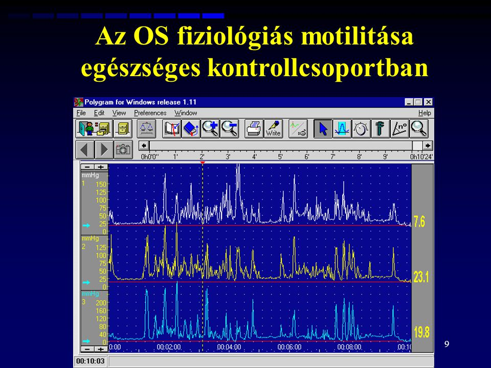 Az OS fiziológiás motilitása egészséges kontrollcsoportban