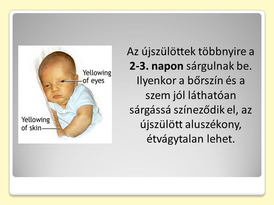 Az újszülöttek többnyire a 2-3. napon sárgulnak be