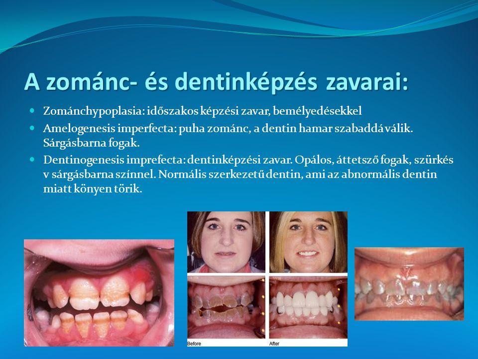 A zománc- és dentinképzés zavarai: