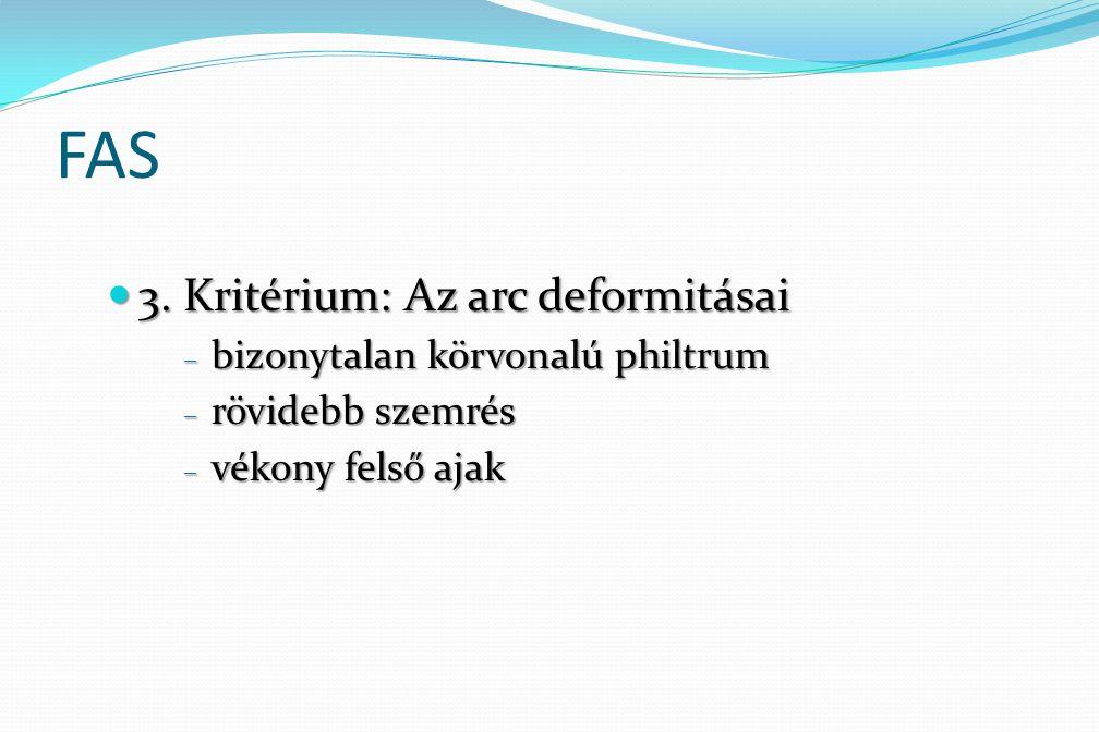FAS 3. Kritérium: Az arc deformitásai bizonytalan körvonalú philtrum