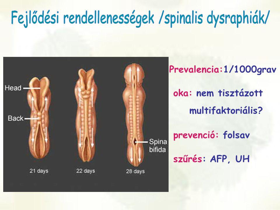 Fejlődési rendellenességek /spinalis dysraphiák/
