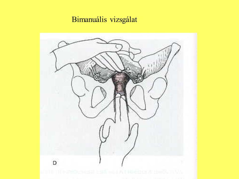 Bimanuális vizsgálat