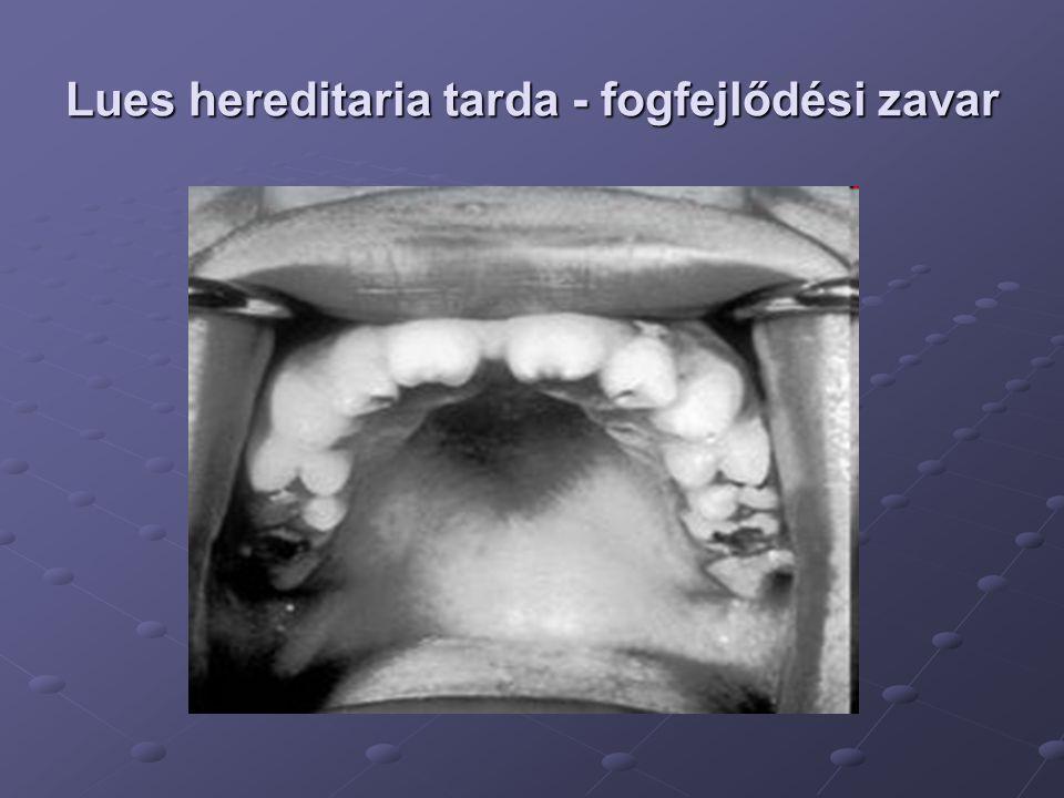 Lues hereditaria tarda - fogfejlődési zavar