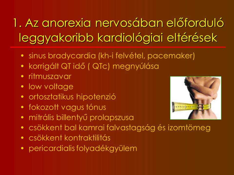 1. Az anorexia nervosában előforduló leggyakoribb kardiológiai eltérések