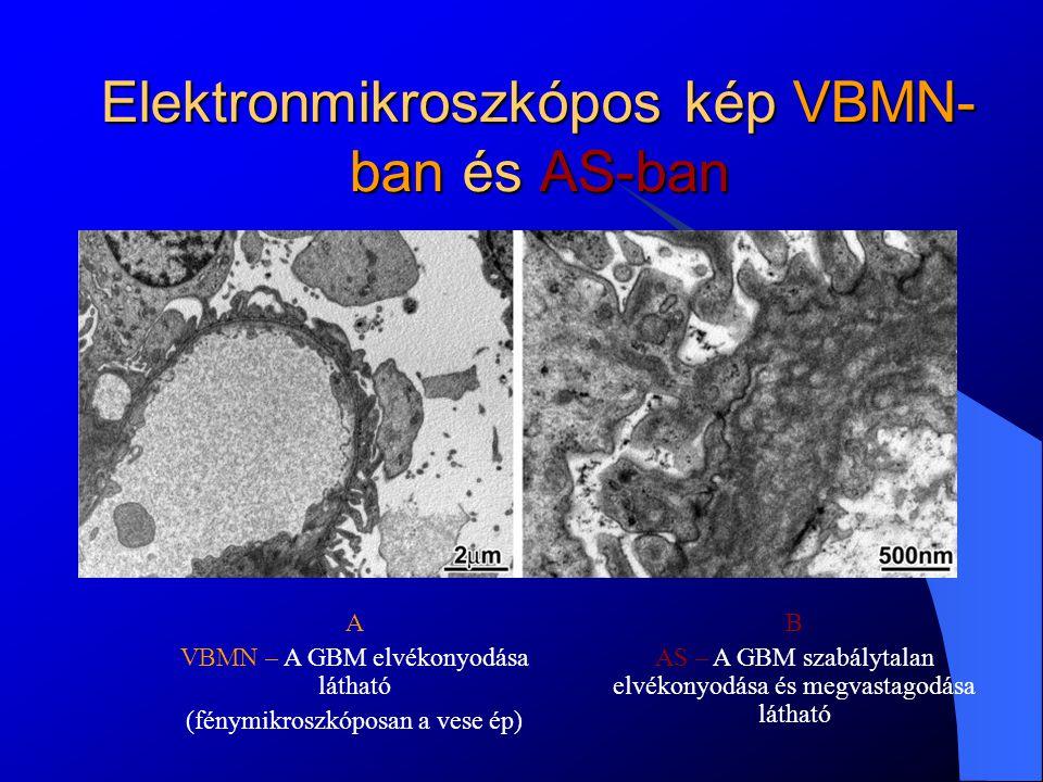 Elektronmikroszkópos kép VBMN-ban és AS-ban