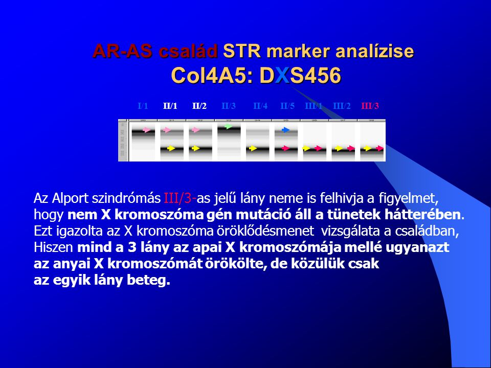 AR-AS család STR marker analízise Col4A5: DXS456