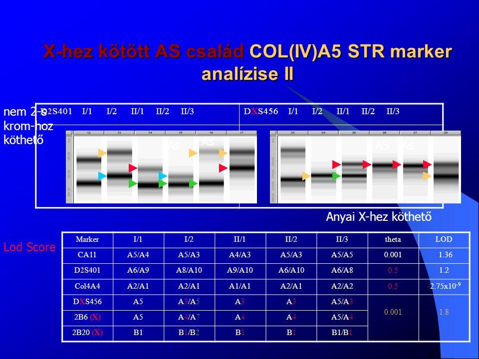 X-hez kötött AS család COL(IV)A5 STR marker analízise II