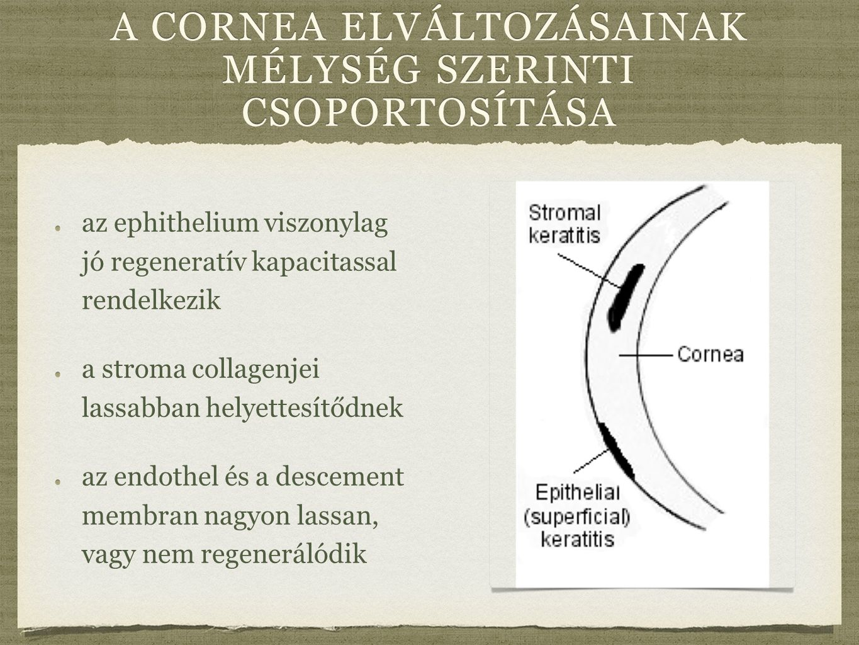 a cornea elváltozásainak mélység szerinti csoportosítása