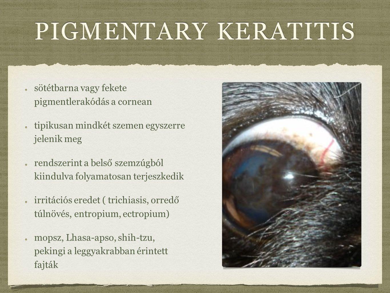 pigmentary keratitis sötétbarna vagy fekete pigmentlerakódás a cornean
