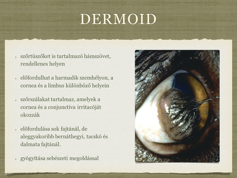 dermoid szőrtüszőket is tartalmazó hámszövet, rendellenes helyen